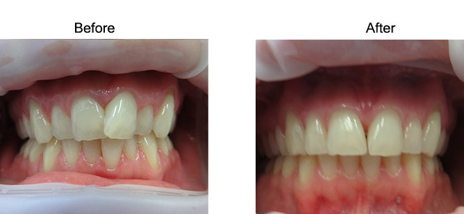 quick-straight-teeth-before-and-after